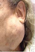 Dr. Szalmay - fül-orr-gégész szakorvos - Nyaki műtétek -  - 10_parotid gland.jpg