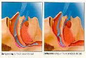 Dr. Szalmay - fül-orr-gégész szakorvos - Alvási apnoe (légzéskimaradás alvás közben)
