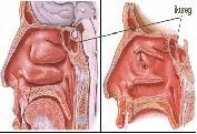 Dr. Szalmay - fül-orr-gégész szakorvos - Az orr műtétei -  - 8_fess01.jpg