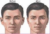 Dr. Szalmay - fül-orr-gégész szakorvos - Elálló fülek sebészeti úton történő korrekciója.